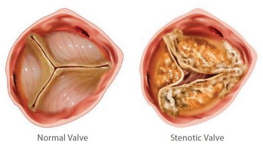 пластика аортального клапана