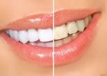 Белоснежная улыбка за 24 минуты. Отбеливание зубов лампой «LUMA COOL»